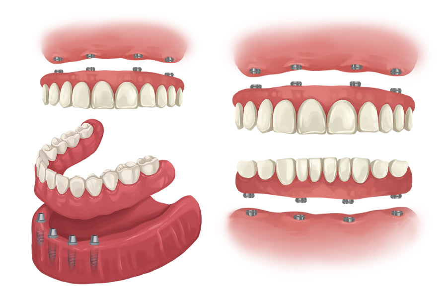 How Do Implant-Supported Dentures Work?