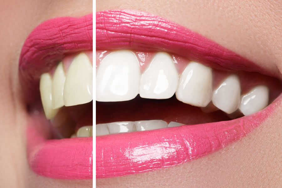 Closeup of a smile split between before teeth whitening and a brighter smile after