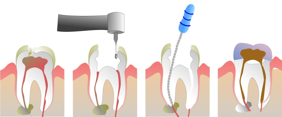 Graphic showing the steps to completing a root canal.